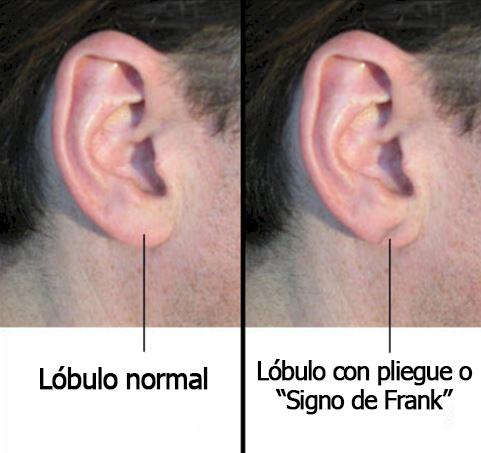 relacion entre las orejas y las enfermedades coronarias 6