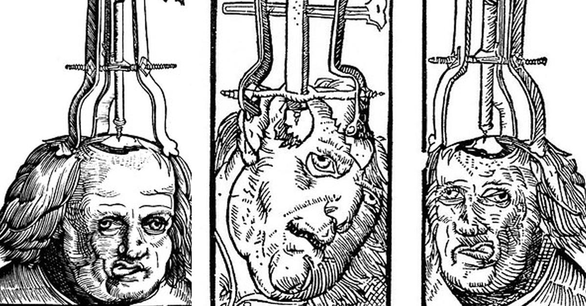 tratamientos-medicina-antigüedad