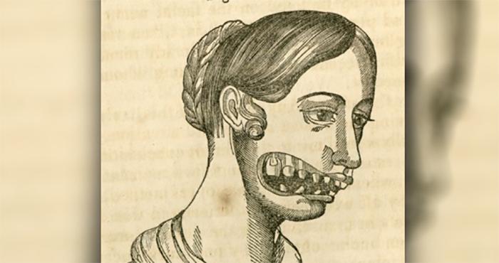 enfermedades-antiguas