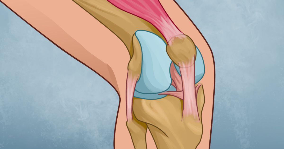 Te duelen las rodillas? Prueba a hacer estos fáciles ejercicios en ...