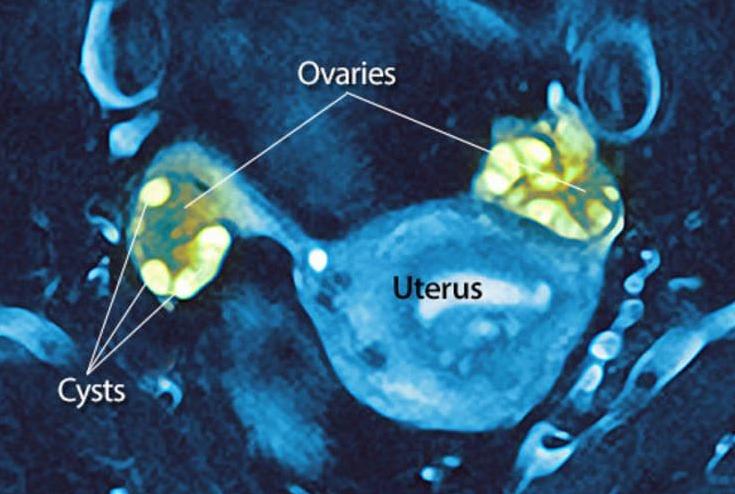 ovario poliquistico 3