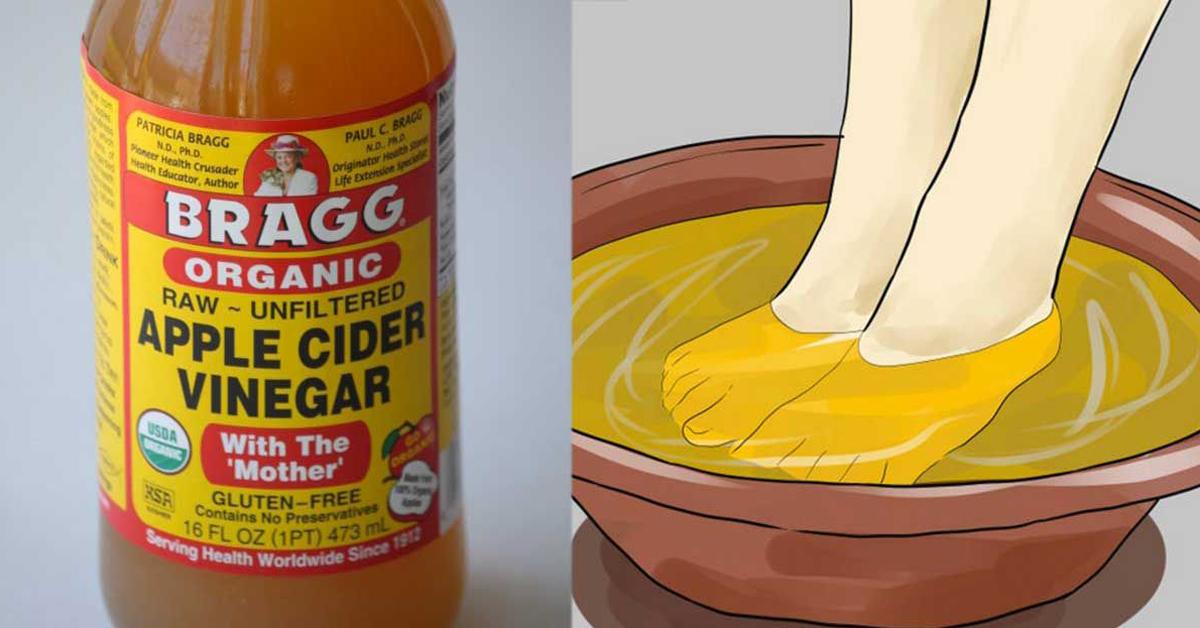 Vinagre de manzana infeccion garganta