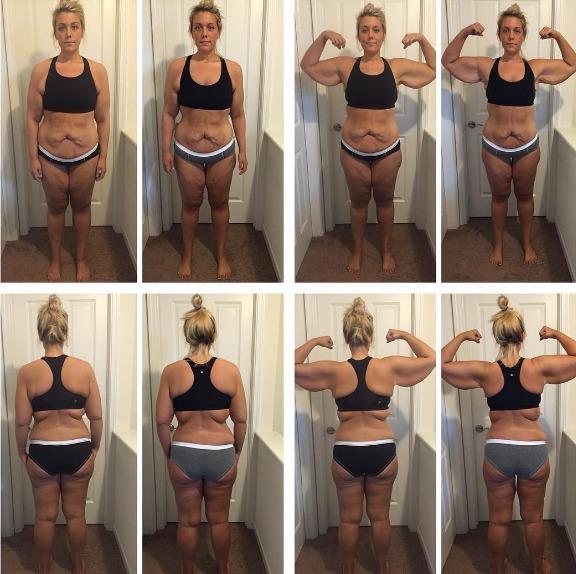 perdida peso piel 3