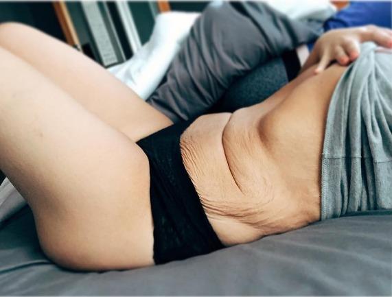 perdida peso piel 4