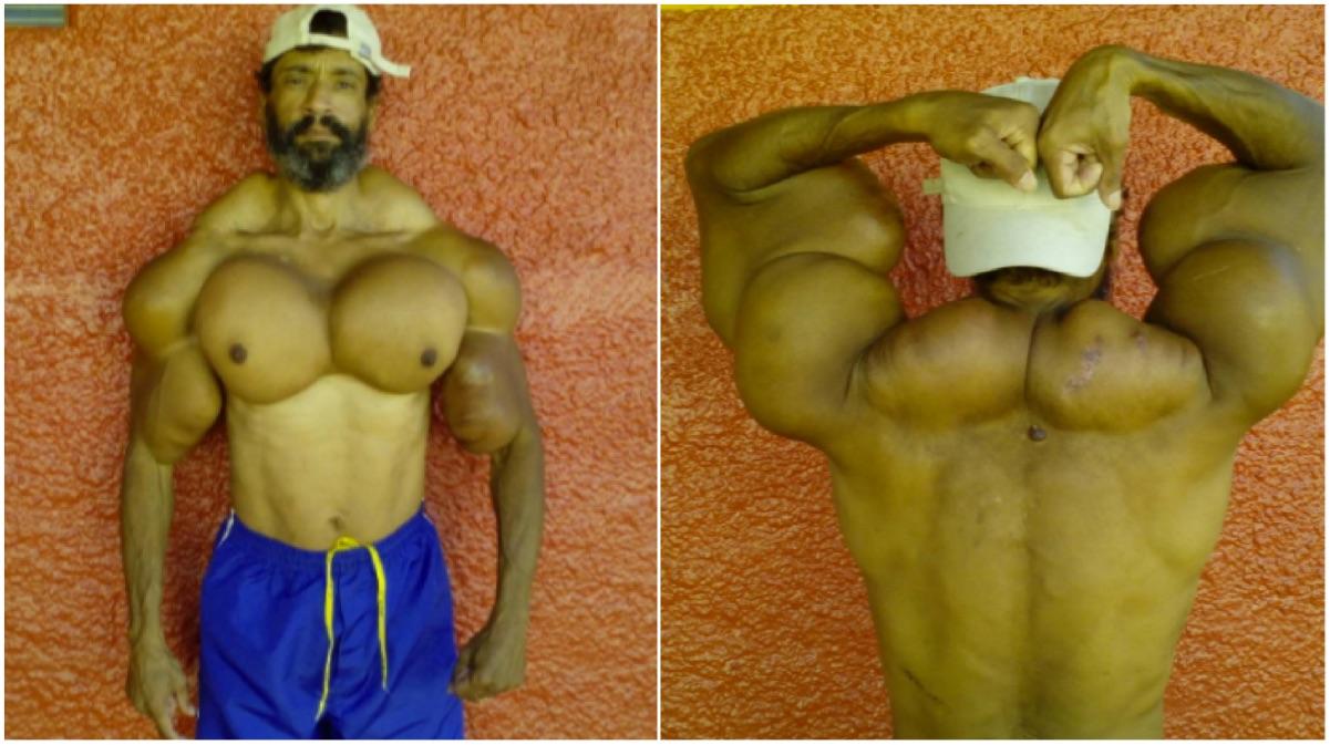 portada musculo