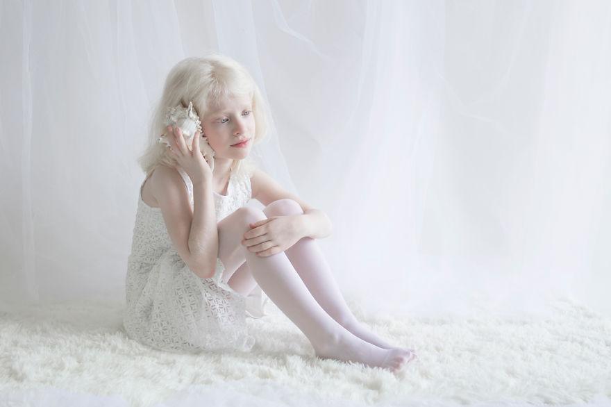 albino yulia 10