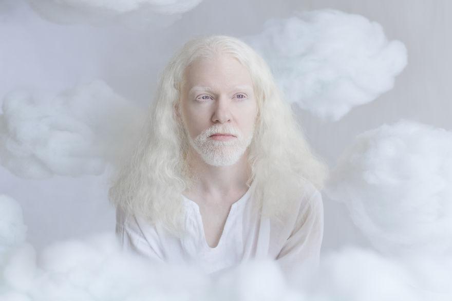 albino yulia 3