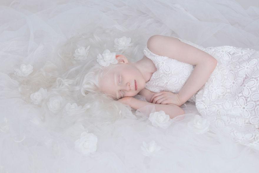 albino yulia 4