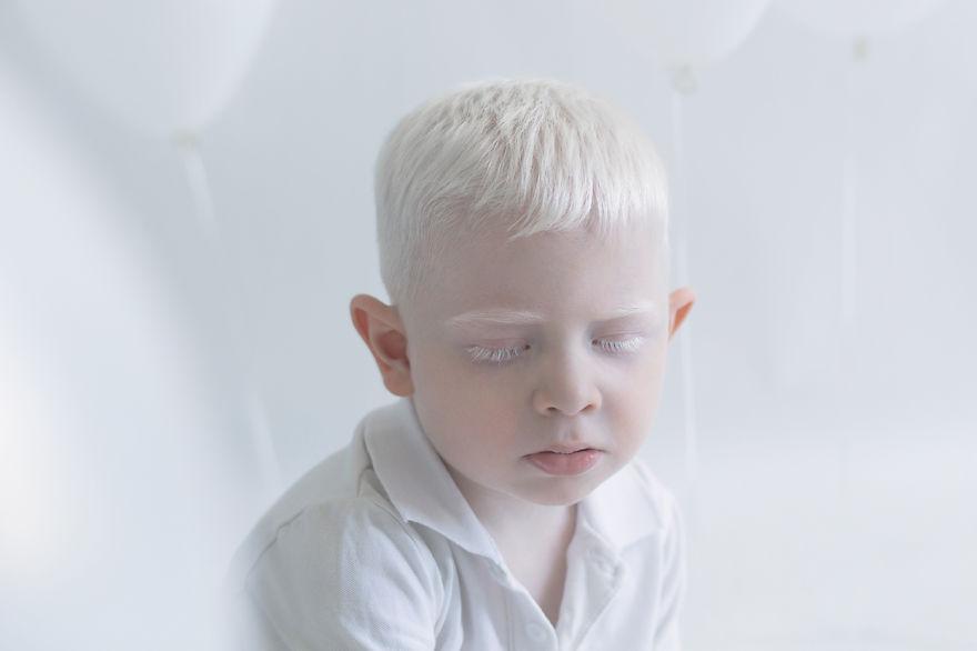 albino yulia 5