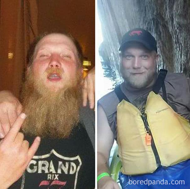 antes y despues de gente que dejo de beber alcohol 13