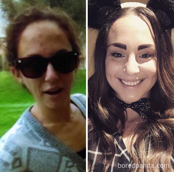antes y despues de gente que dejo de beber alcohol 18