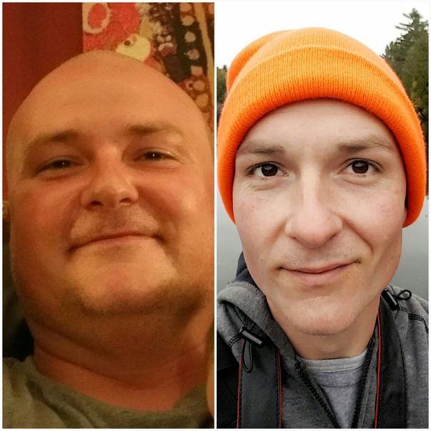 antes y despues de gente que dejo de beber alcohol 8