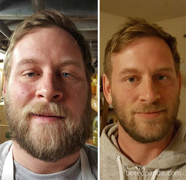 el antes y despues de personas que dejaron el alcohol 1