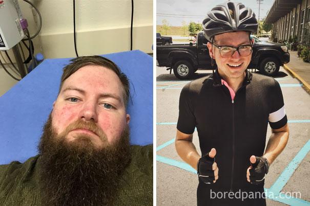 el antes y despues de personas que dejaron el alcohol 4