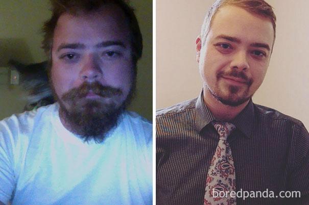 el antes y despues de personas que dejaron el alcohol 5