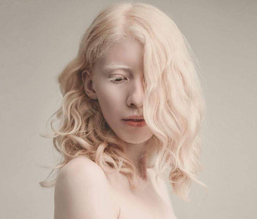modelo_albina