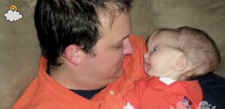 historia-bebe-hidrocefalia3
