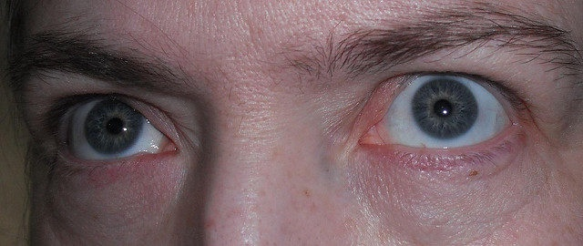 http://lavozdelmuro.net/8-cosas-que-dicen-tus-ojos-sobre-tu-salud/