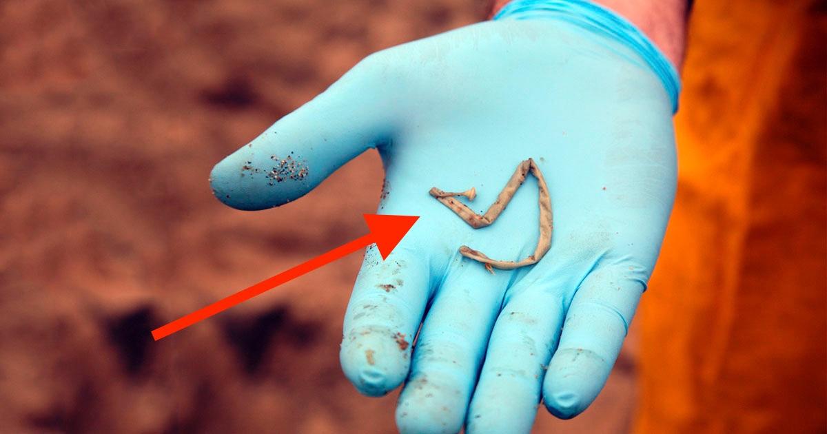 ¿Pueden los parásitos vivir en tus uñas?