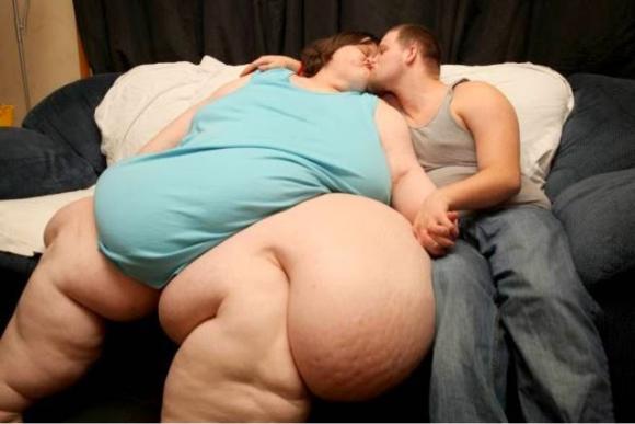 Obesidad mórbida, una de sus causas más habituales el consumo descontrolado de calorías