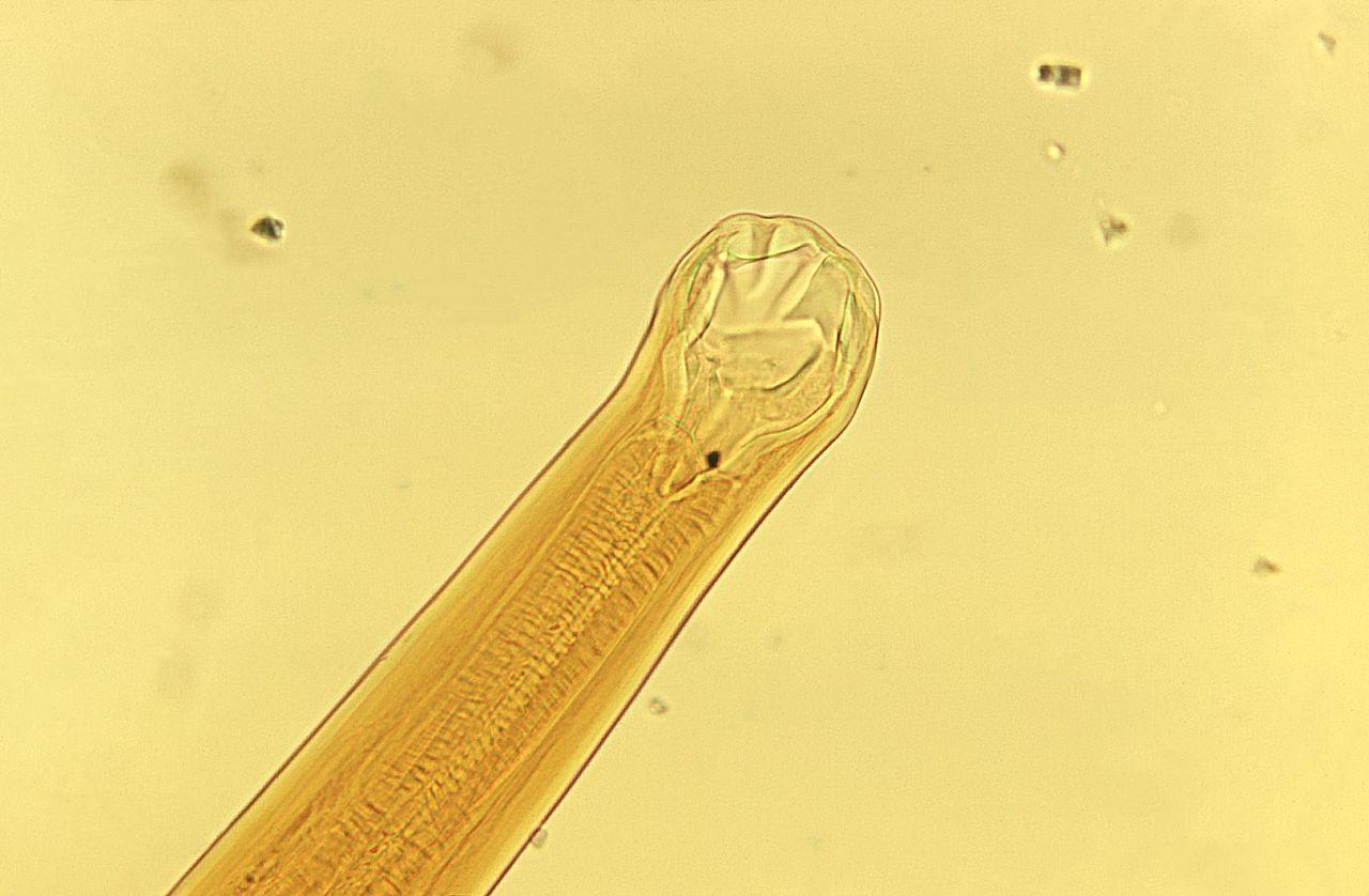 ¿Pueden los gusanos parásitos vivir fuera del cuerpo?