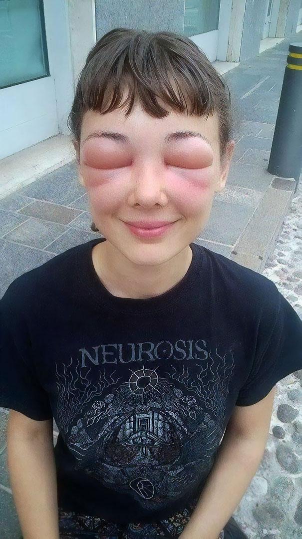 mal día, alergia