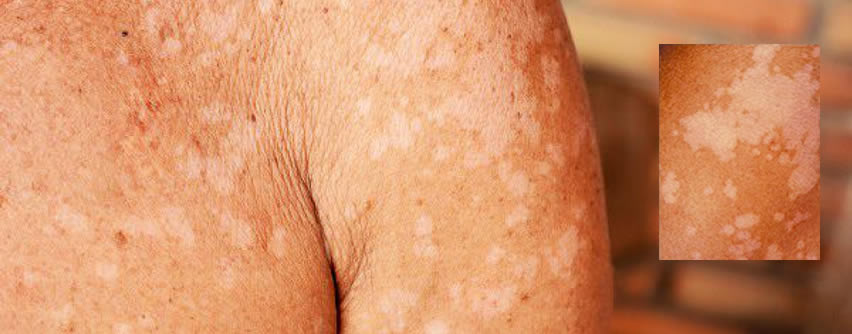 manchas en blancas en la piel