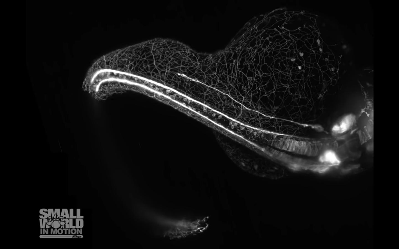 sistema nervioso, embrión, pez cebra