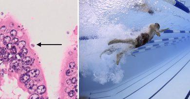 parásito fecal en piscinas