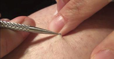 punto-de-sutura