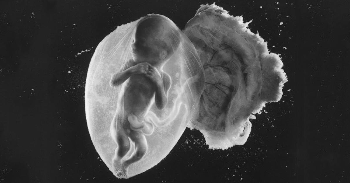 Fotografia feto