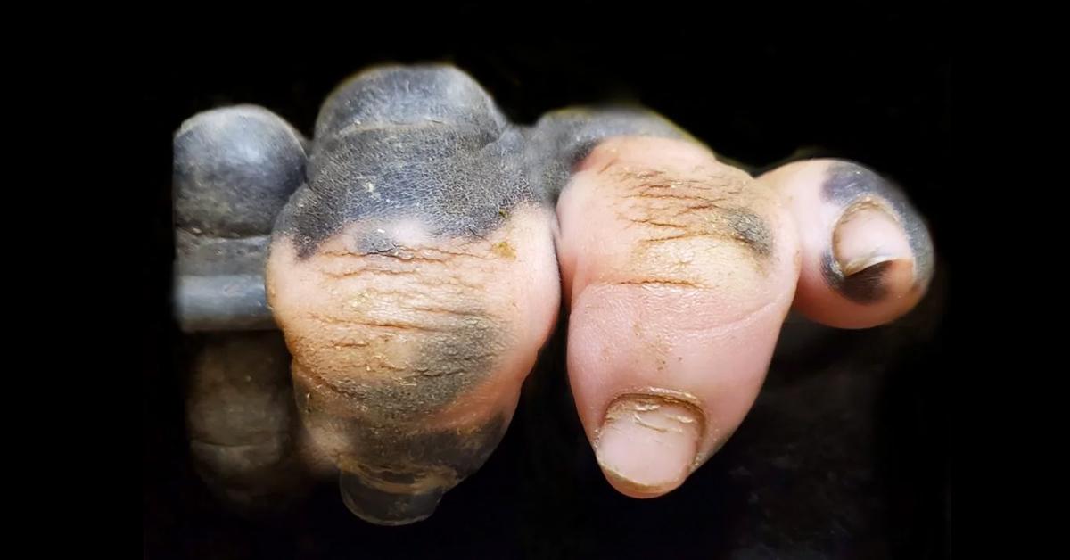 mano-pigmentada-blanca-gorila