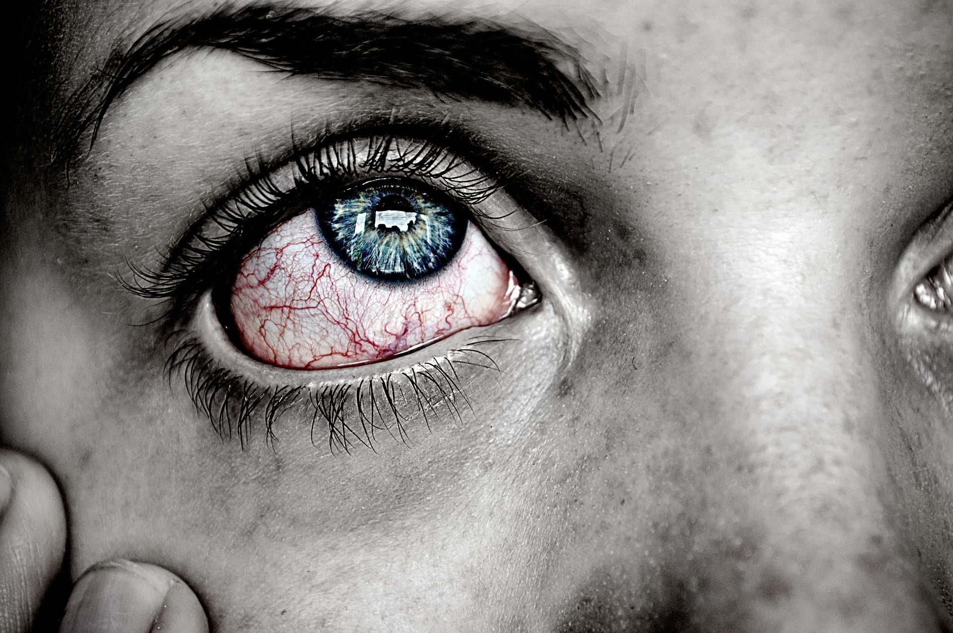 ojo-irritado