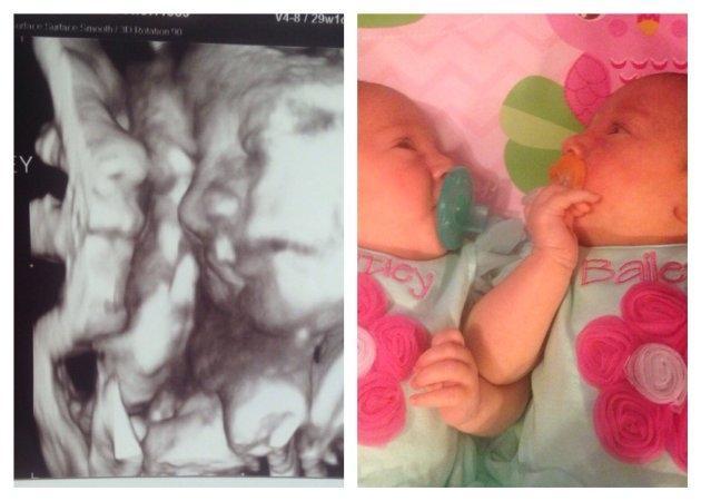 embarazo múltiple ecografía 4d