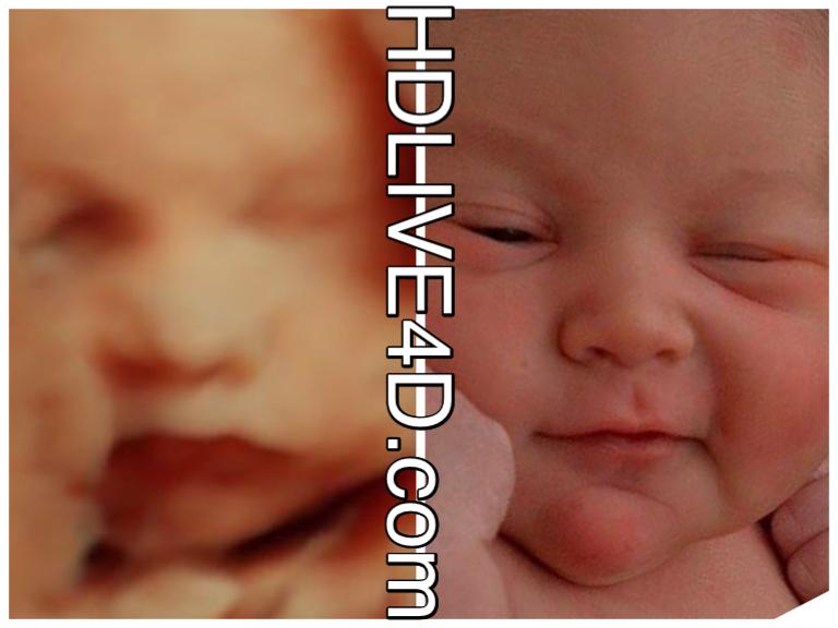 ecografía bebé antes de nacer y después