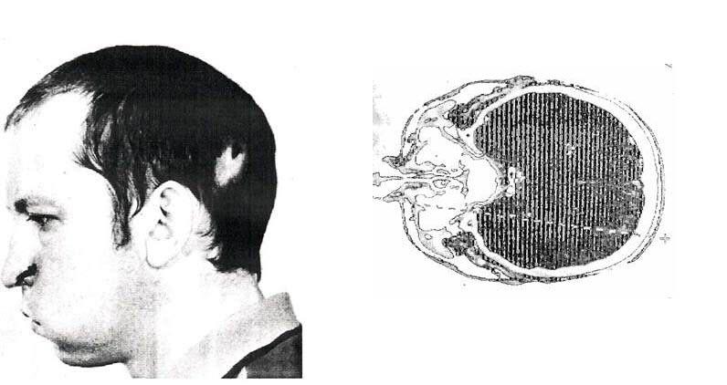 cerebro radiografía bugorski