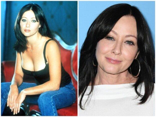 Shannen Doherty antes y después