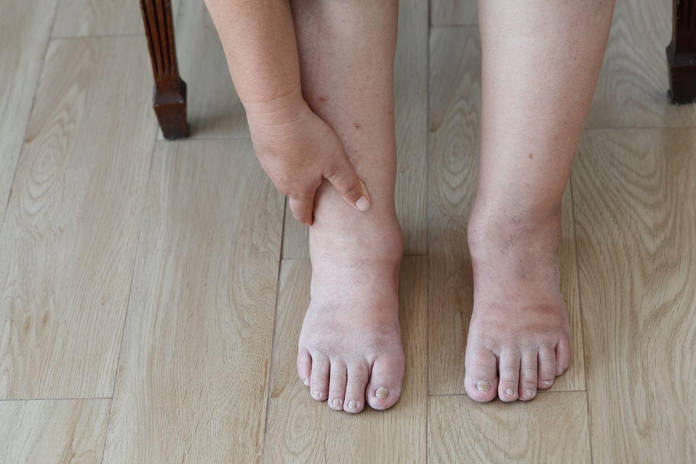 pies hinchados