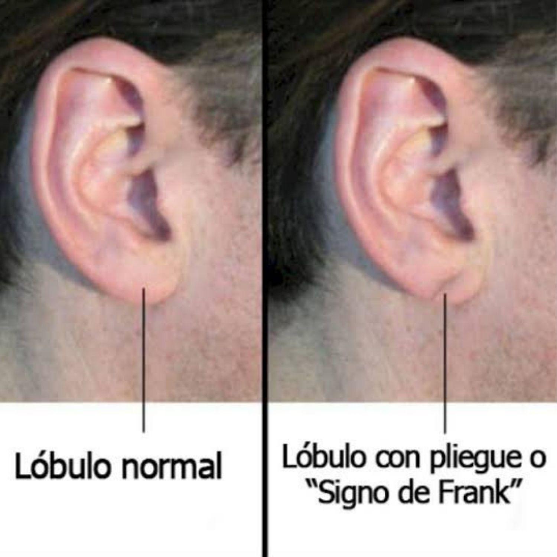 surco oreja