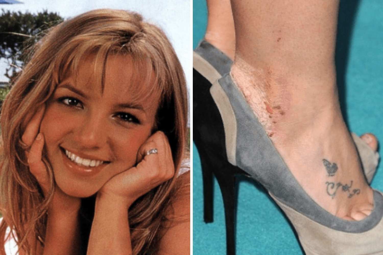 Britney Spears psoriasis