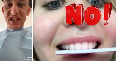 dientes-tik-tok