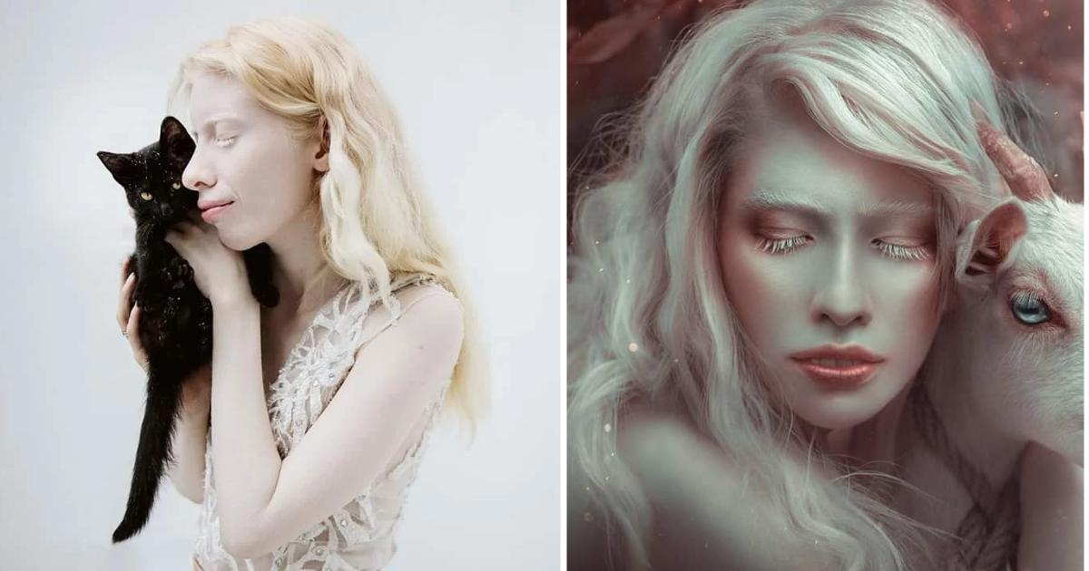 albinismo-modelo