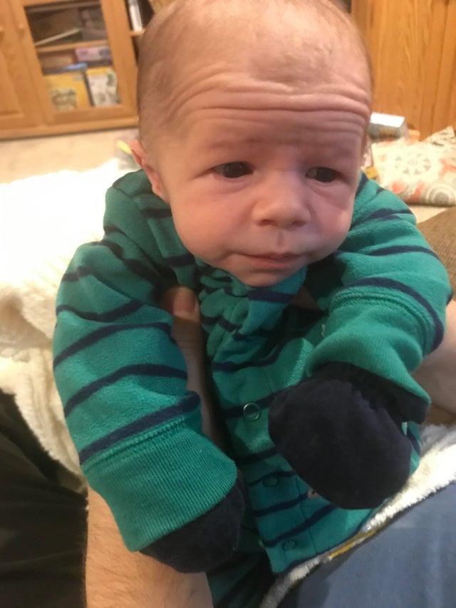 bebé con arrugas en la cara