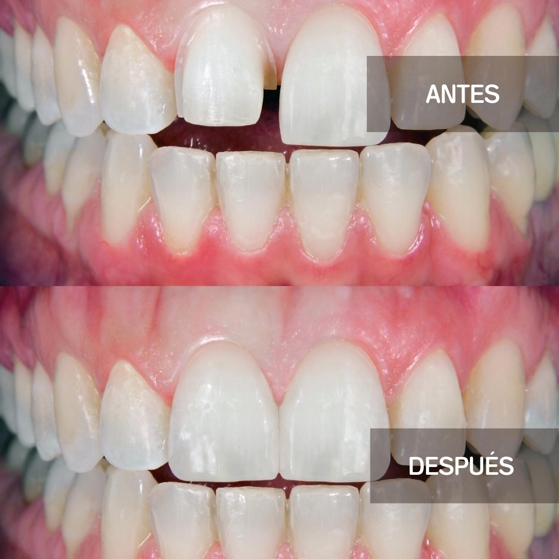 antes y después de tratamiento con carillas dentales